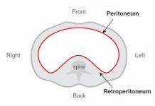 peritoneum karın zarı
